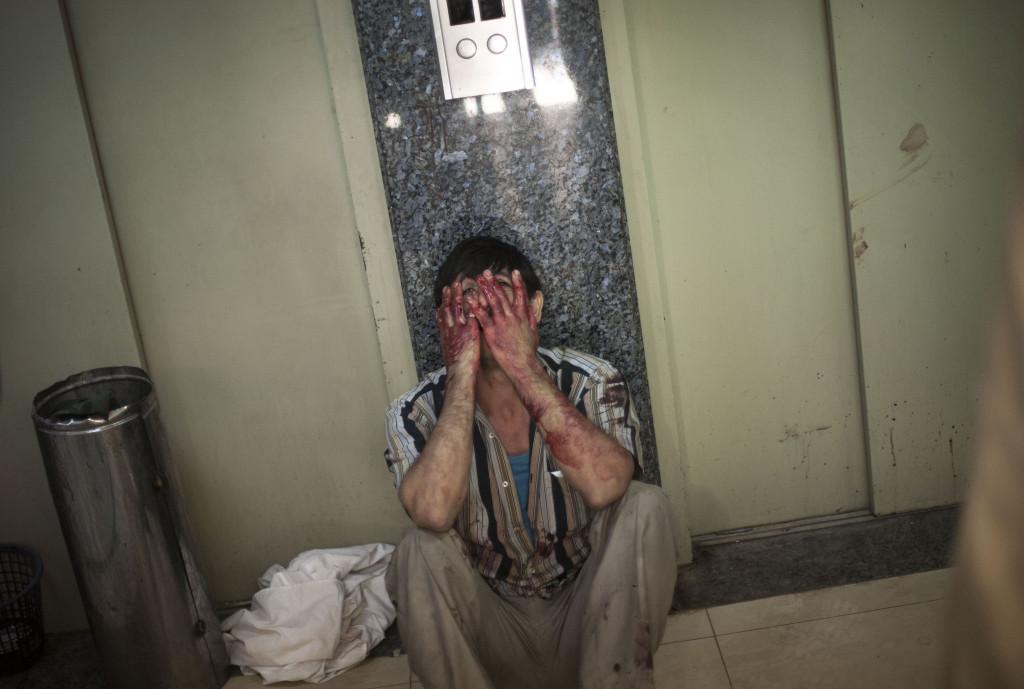 En man gråter i korridoren på sjukhuset Dar El Shifa i Aleppo, Syrien. Hans dotter blev träffad under en attack mot en skola i ett område där många flyktingar tagit skydd. Foto: Manu Brabo/AP Photo/TT.