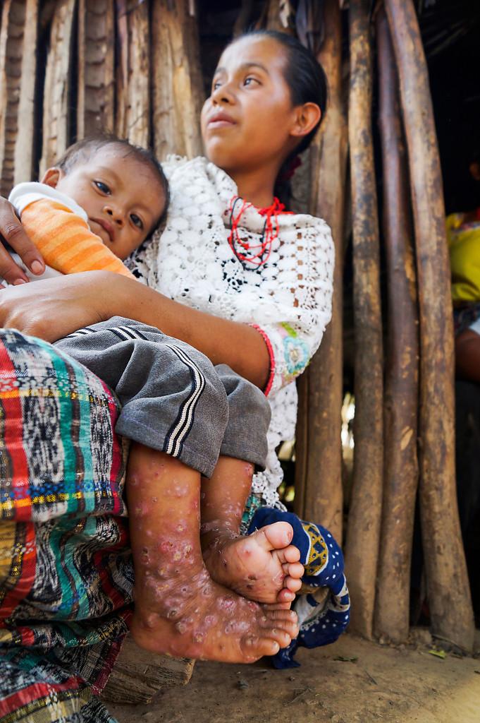 – På sockerrörsplantagen används mycket kemikalier. Vi dricker förorenat vatten och barnen blir sjuka, berättar småbrukaren Amelia Choc Cuz.